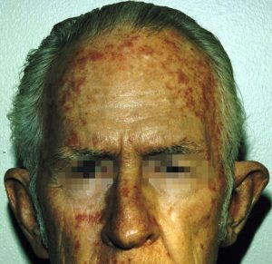 Actinic Keratosis on Forehead and Face