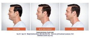 Kybella Before Mid-treatment and After Male