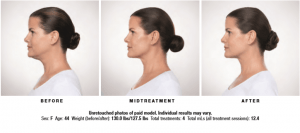 Kybella Before Mid-treatment and After