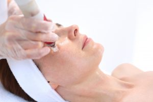 Microneedling with PRP - Northshore Dermatology